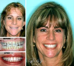 Orthodontic work