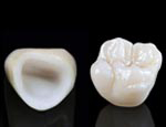 150-zirconia-crown