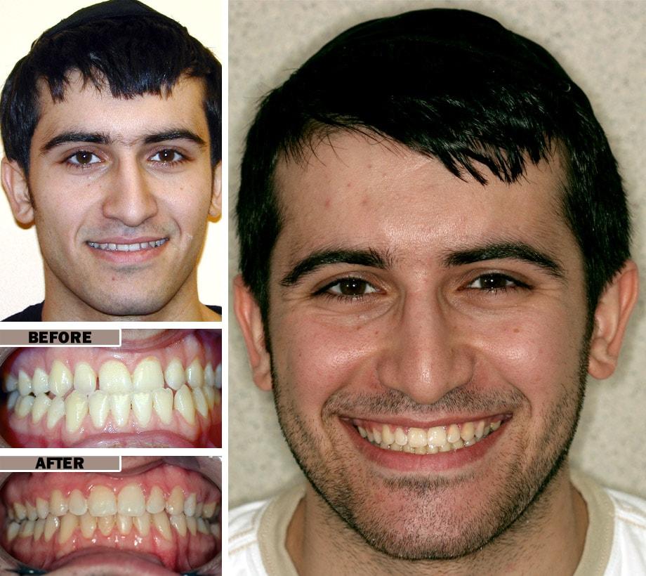 Orthodontics Smile Gallery - EnvySmile Dental Spa