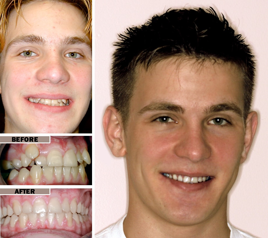 Before and After Braces in Brooklyn NY