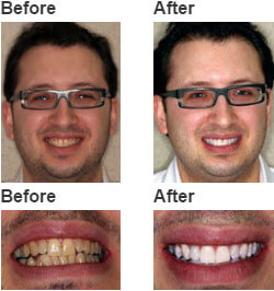 Whitening For Life Teeth Whitening Experts In Brooklyn Ny