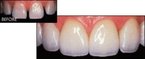 ceramic crowns before after