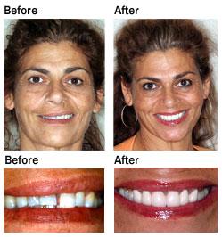 CosmeticVeneers_before-aft