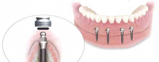 Implant-Supported Denture: A Permanent Solution for Loose Dentures