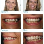 six month smiles before after debra