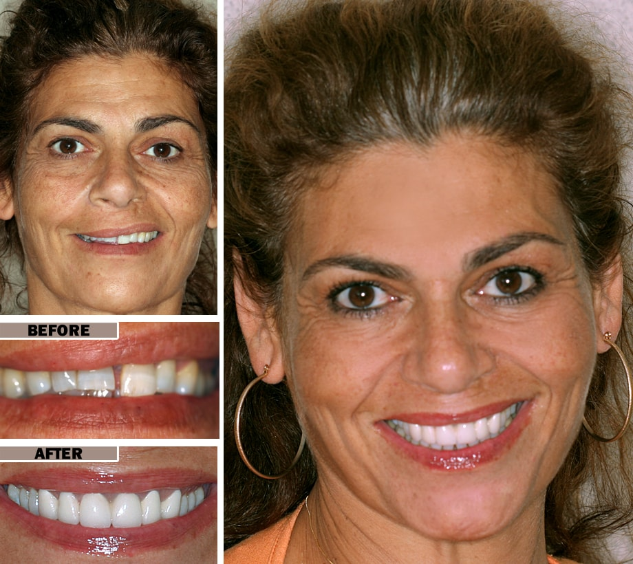 Before/After Smile Makeover in Brooklyn