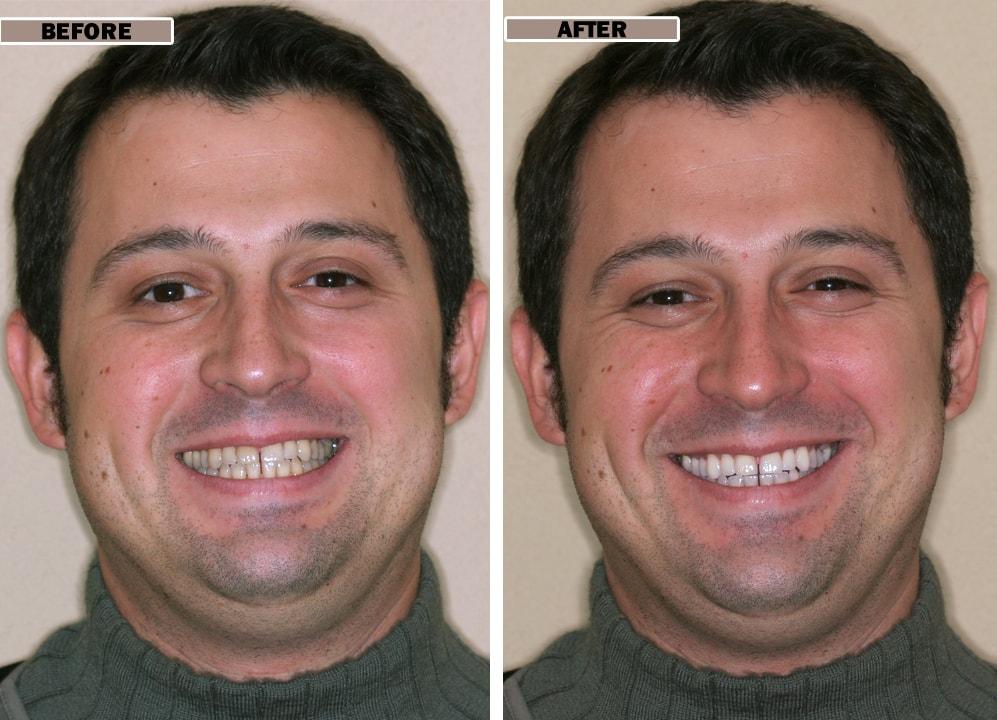Whitening Smile Gallery Envysmile Dental Spa