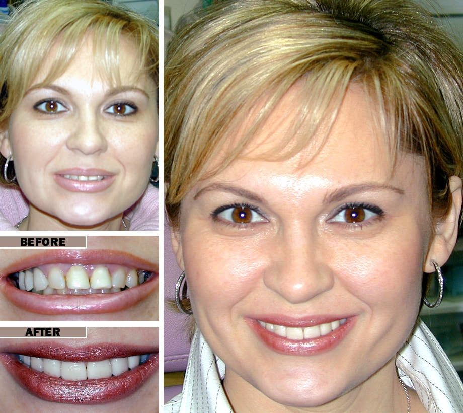 Dental veneers porcelain veneers teeth press on veneers you might not always think about it but as soon as something feels or looks off you notice immediately do yourself solutioingenieria Image collections