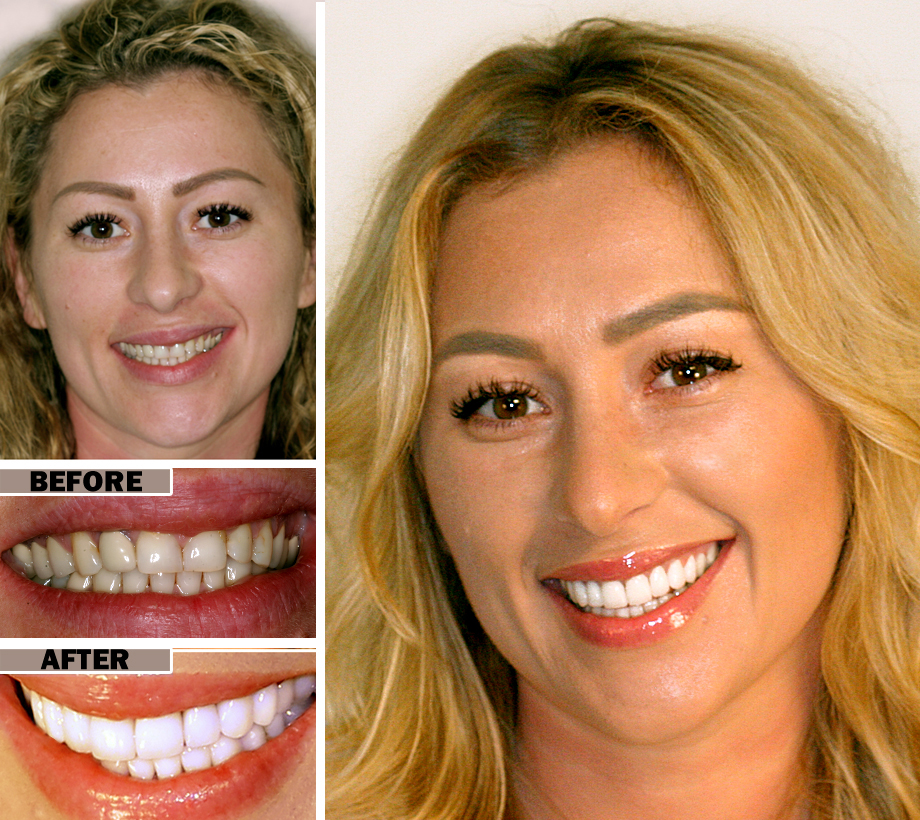 Teeth Cleaning Brooklyn | Before After