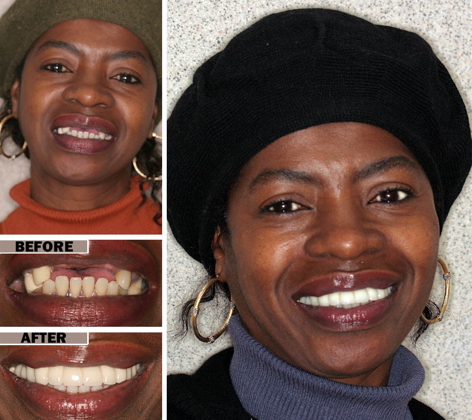Affordable Dentures Brooklyn | Before After