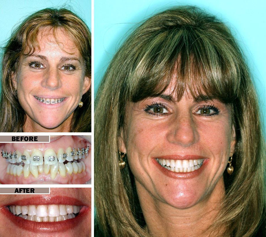 Adult Orthodontics Braces Brooklyn | Before After