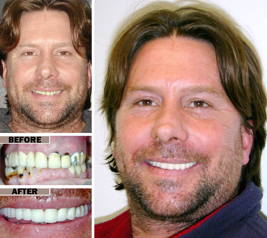 Cosmetic Dental Surgery Brooklyn | Before After