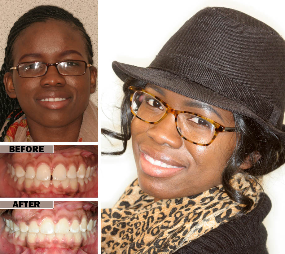 Cracked Retainer Dentist Brooklyn | before after