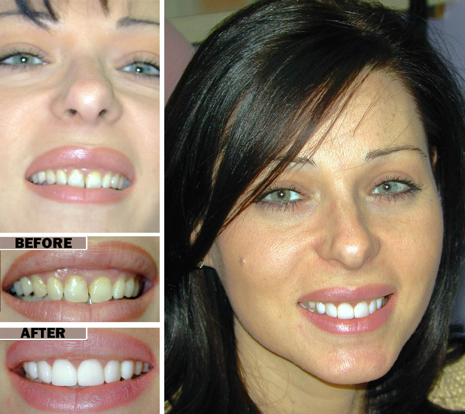 Gum Disease Treatment Brooklyn NYC | Before After