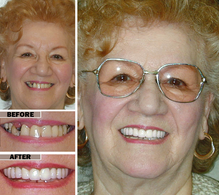 Implant Supported Dentures Brooklyn NYC | Before After