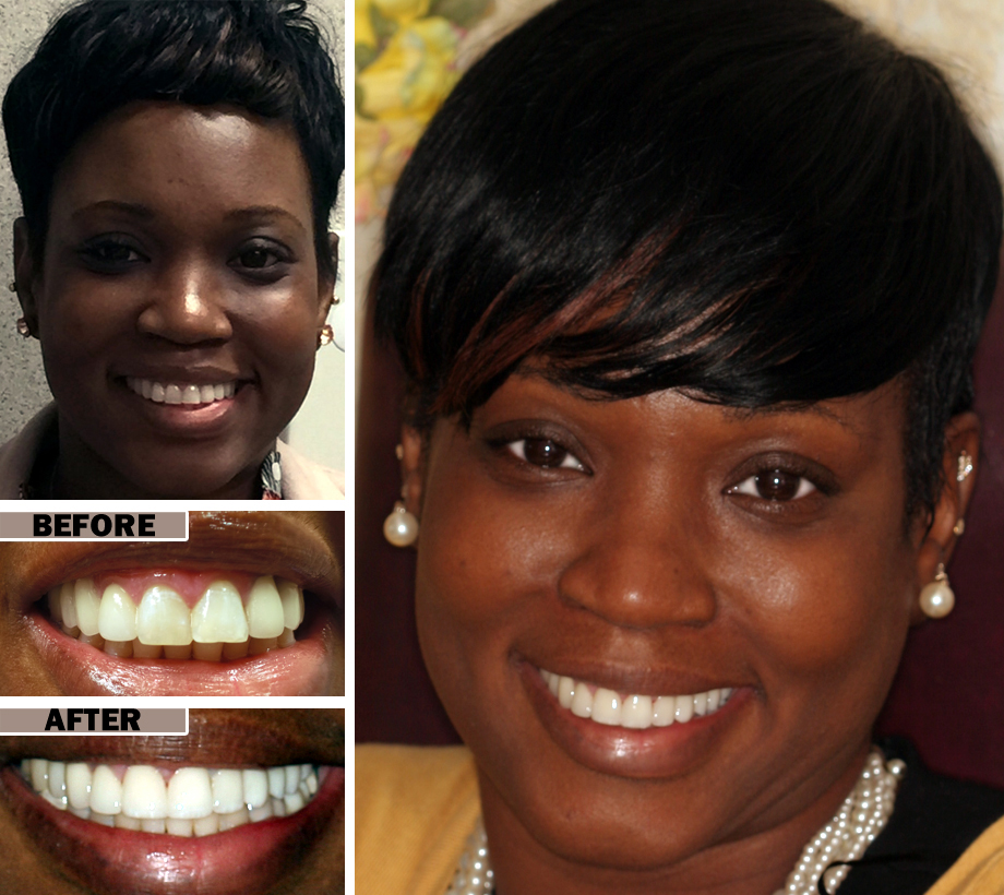 Dental Teeth Crowns Cosmetic Dentist In Brooklyn Nyc