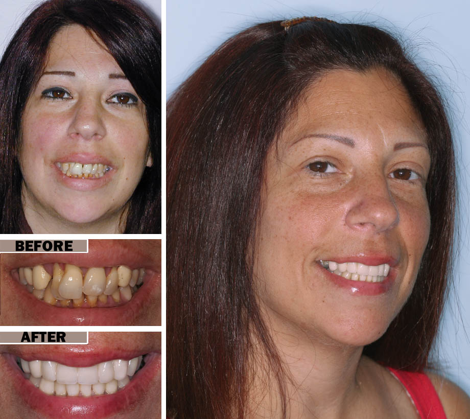 Oral Surgery Brooklyn | Before After