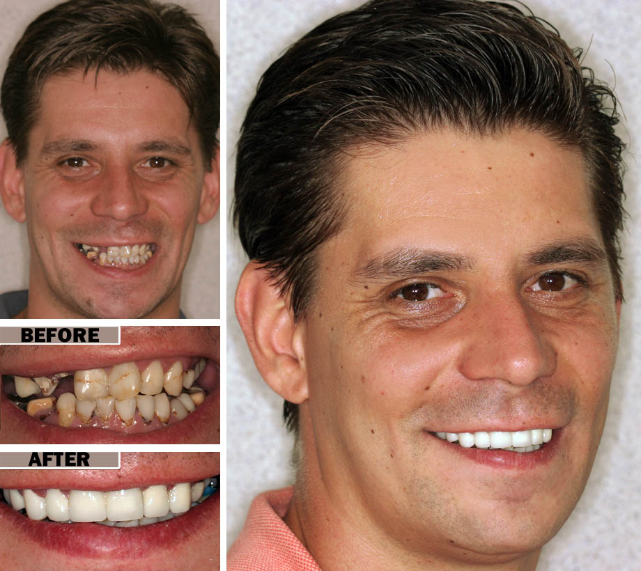 Root Canal Procedure Brooklyn | Before After