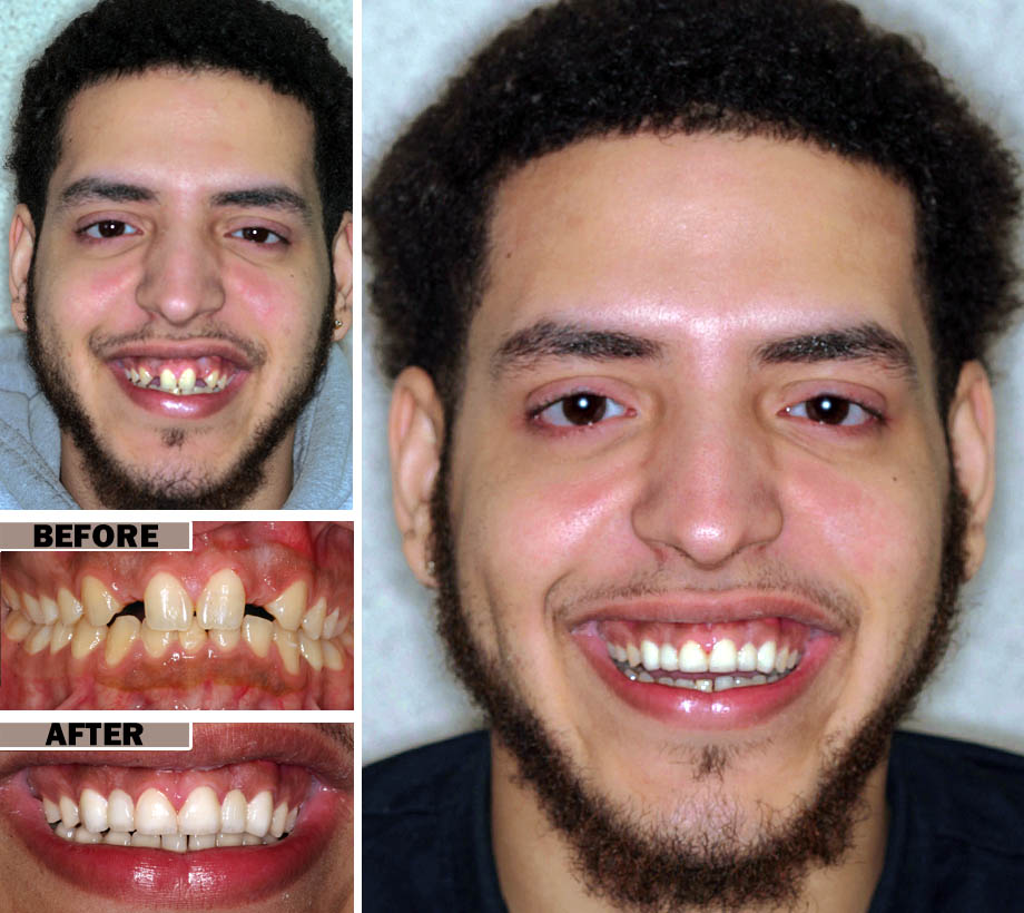 Celebrity Pictures - Extreme Smile Makeover