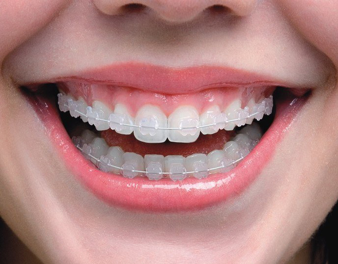 A Straighter Smile Is Simple with Clear Invisible Braces