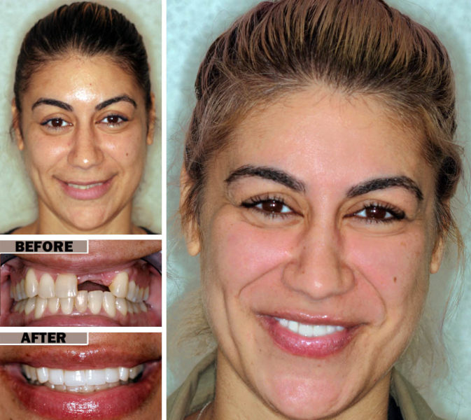 dental implants brooklyn nyc | before after