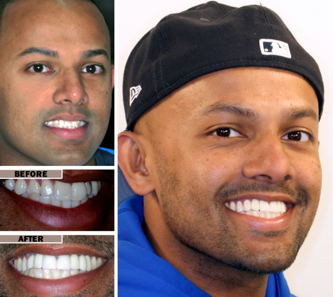 veneers brooklyn before after