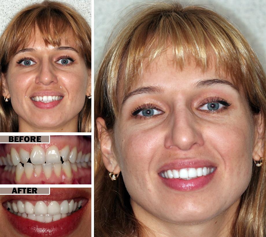 before/after dental bonding in Brooklyn