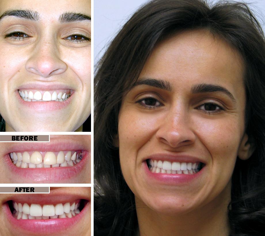 Teeth Reshaping Procedure Brooklyn Before/After
