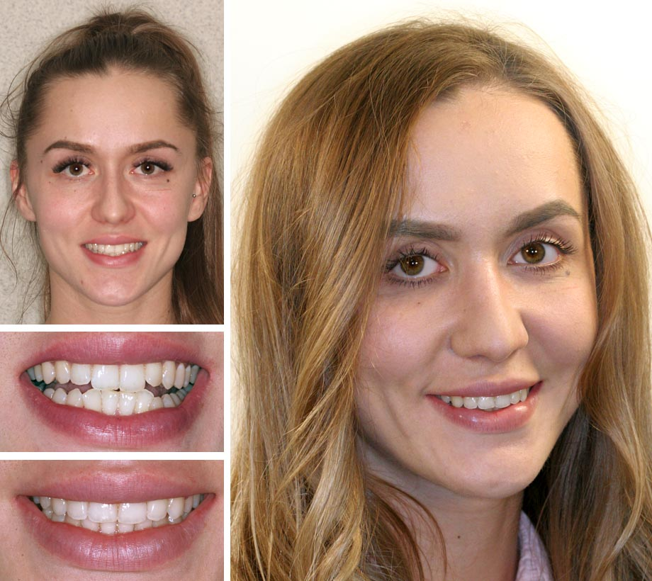 Our Comfort Dental Braces Ideas