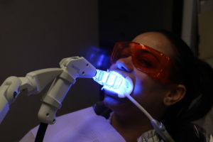 Sapphire Teeth Whitening System