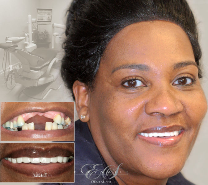 Dental Implants (Affordable Teeth Implants) - Brooklyn
