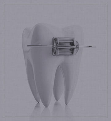 orthodontics dentistry brooklyn | envy smile