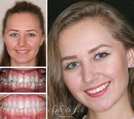 Before and After Invisalign in Brooklyn NY