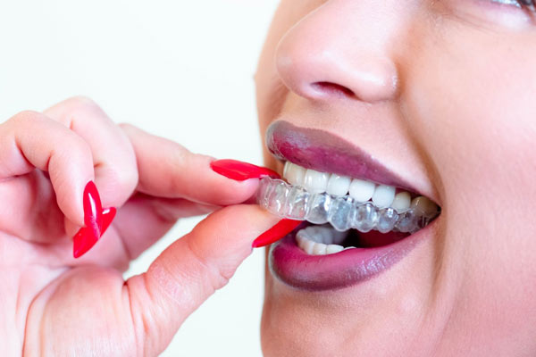 Invisalign Benefits: Why Choose This Treatment?